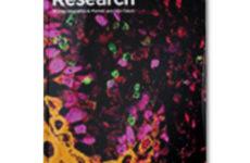 Взаимосвязь между подверженностью воздействию табачного дыма впренатальном периоде ивтечение первых месяцев жизни ичастотой делеции гена удетей сострым лимфобластным лейкозом